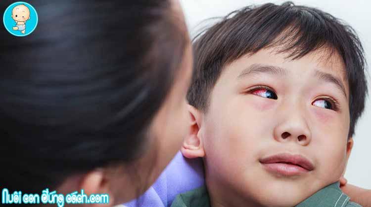 Chữa và phòng bệnh đau mắt đỏ ở trẻ