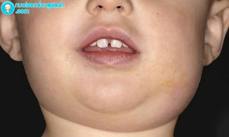 Nguy hiểm của bệnh quai bị với trẻ nhỏ